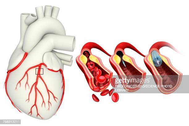 coronary angioplasty stent insertion, illustration - artery stock illustrations, clip art, cartoons, & icons