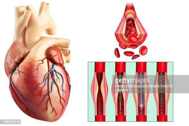 coronary angioplasty stent insertion, illustration - coronary artery stock illustrations, clip art, cartoons, & icons