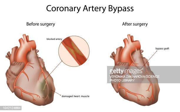 coronary artery bypass, illustration - sclerosis stock illustrations