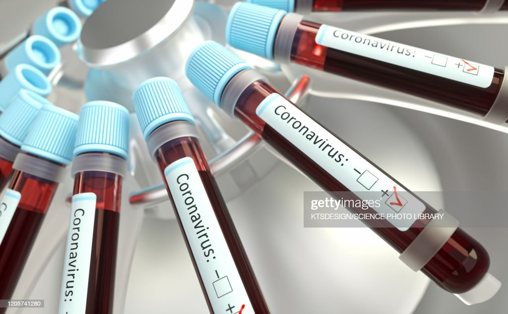 Coronaviruses research, conceptual illustration : stock illustration