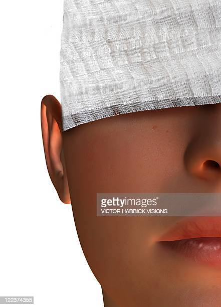 Cosmetic surgery, conceptual artwork