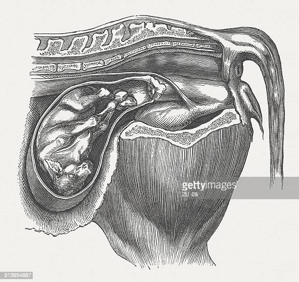 Cow fetus: abnormal position, transverse position, wood engraving, published 1883