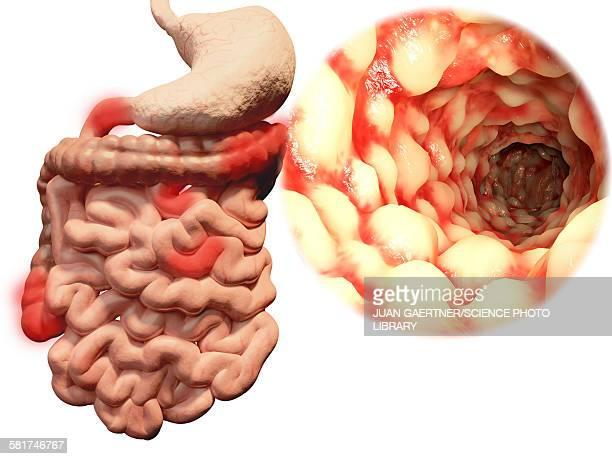 crohns disease, illustration - sick stock illustrations, clip art, cartoons, & icons