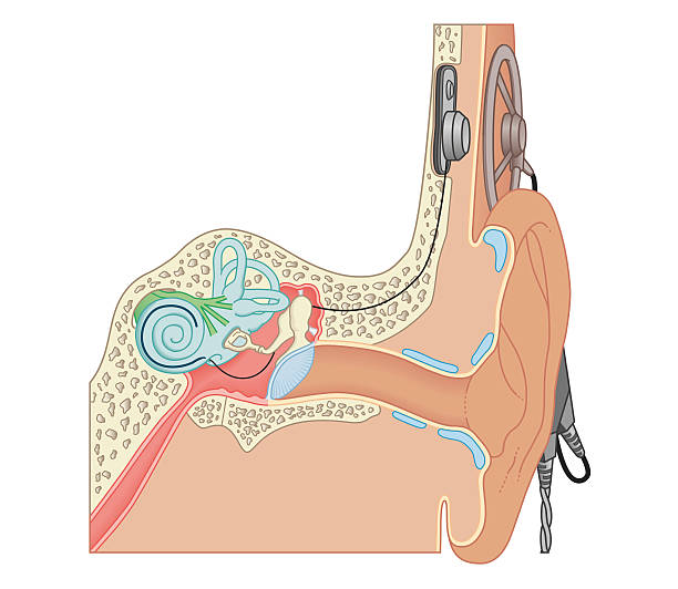 Cross Section Biomedical Illustration Of Cochlear Implants Wall Art