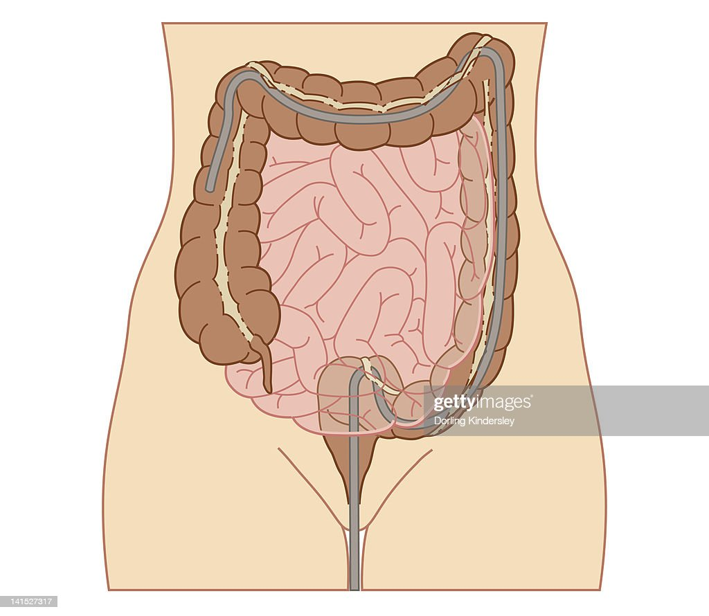 Cross section biomedical illustration of colonoscopy procedure in adult female : Stock Illustration