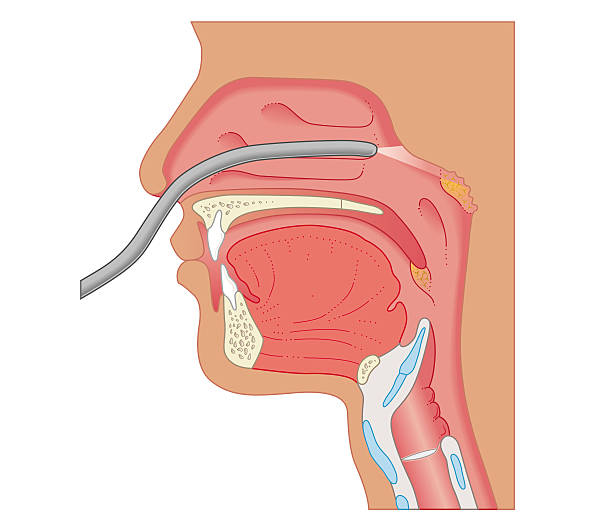 Cross Section Biomedical Illustration Of Endoscopy Of The Nose And Throat Wall Art