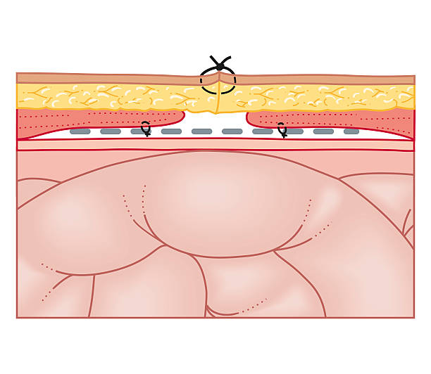 Cross Section Biomedical Illustration Of Hernia Repair Using Synthetic Mesh Wall Art