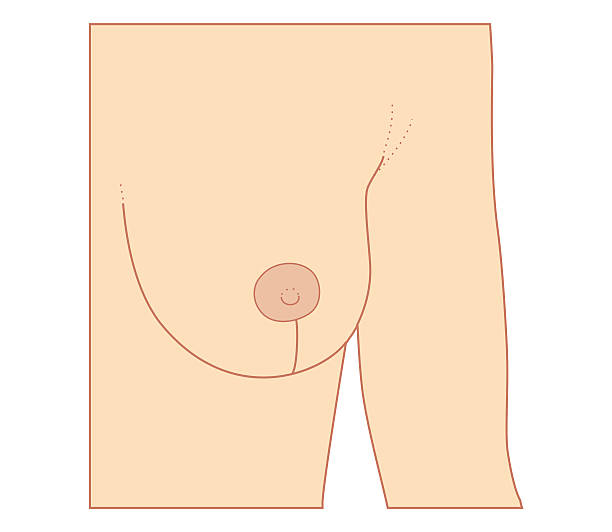 Cross Section Biomedical Illustration Of Incision Site For Breast Reduction Procedure Wall Art