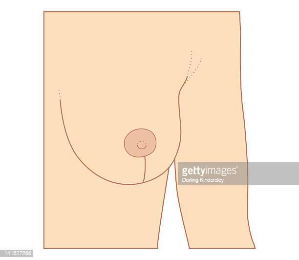 illustrations, cliparts, dessins animés et icônes de cross section biomedical illustration of incision site for breast reduction procedure - chirurgie esthetique