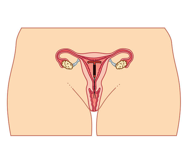 Cross Section Biomedical Illustration Of Intrauterine Device (IUD) In Position Wall Art