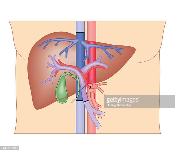Liver Transplant Stock Illustrations And Cartoons