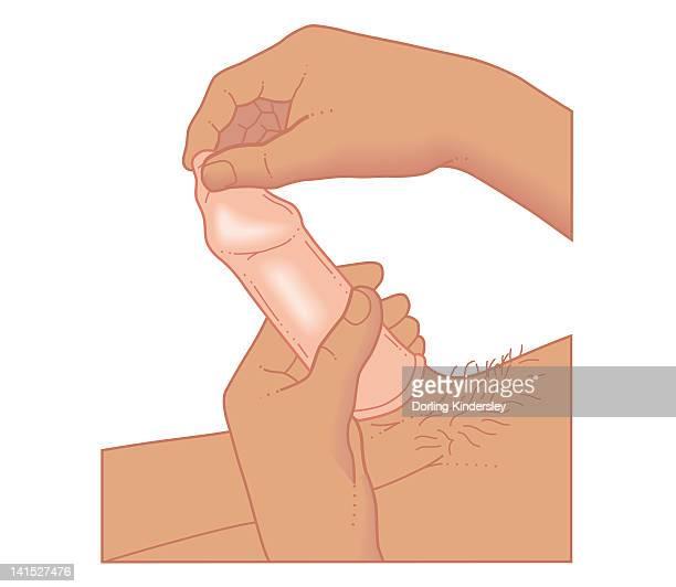 ilustraciones, imágenes clip art, dibujos animados e iconos de stock de cross section biomedical illustration of man with condom on penis - penis