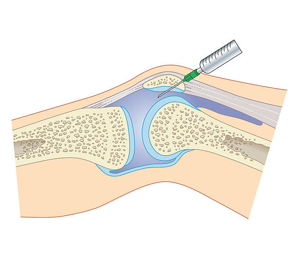 Cross Section Biomedical Illustration Of Removing Synovial Fluid From Knee Using Joint Aspiration Wall Art