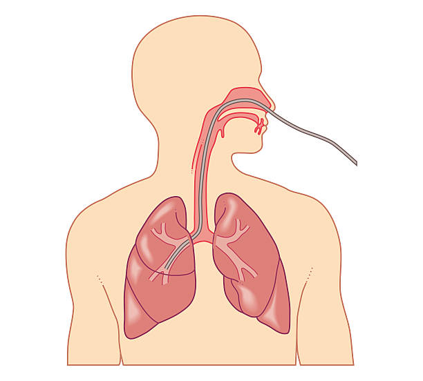 Cross Section Biomedical Illustration Of Route Of Bronchoscope Inserted Through Nose Wall Art