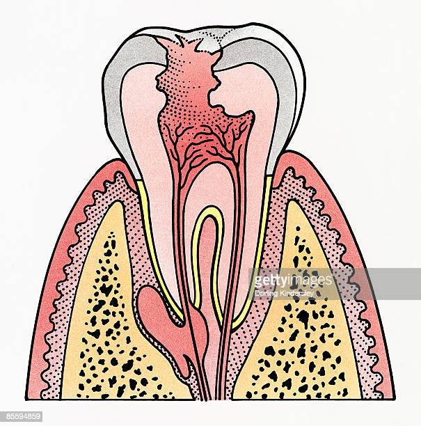 cross section illustration showing tooth decay - toothache stock illustrations, clip art, cartoons, & icons