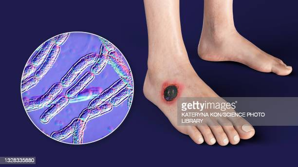 cutaneous anthrax, illustration - antigen stock illustrations
