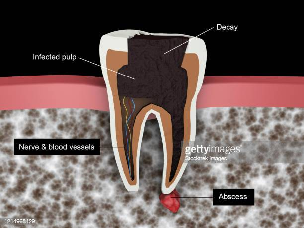 cutaway view of a tooth cavity. - dentin stock illustrations