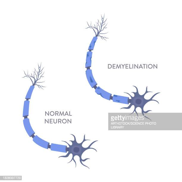 demyelination, illustration - autoimmunity stock illustrations