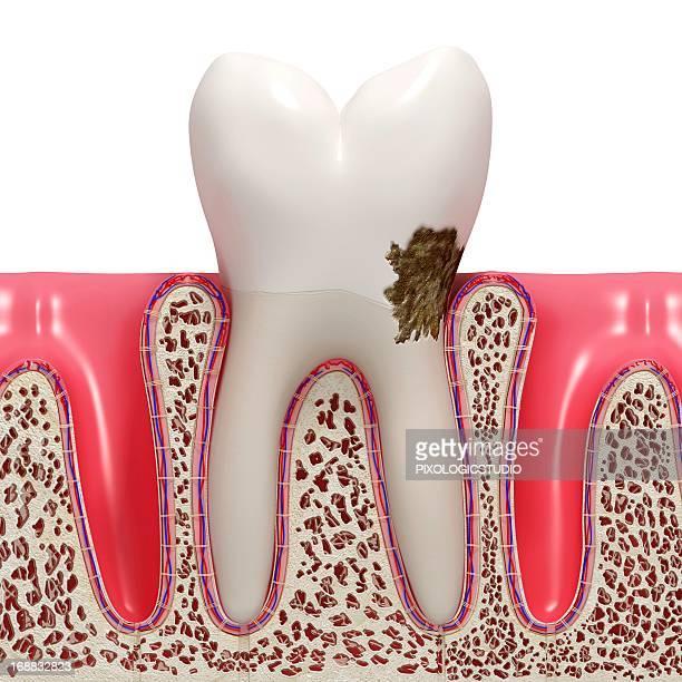 dental plaque, artwork - plaque bacteria stock illustrations