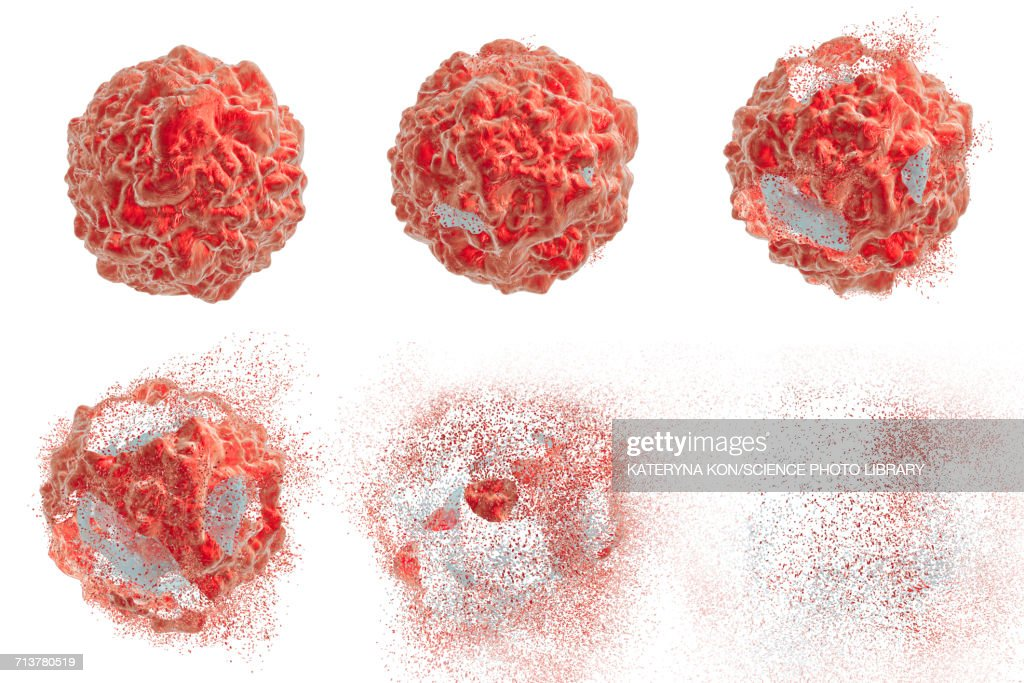 Destruction of a cancer cell, illustration : Stock Illustration