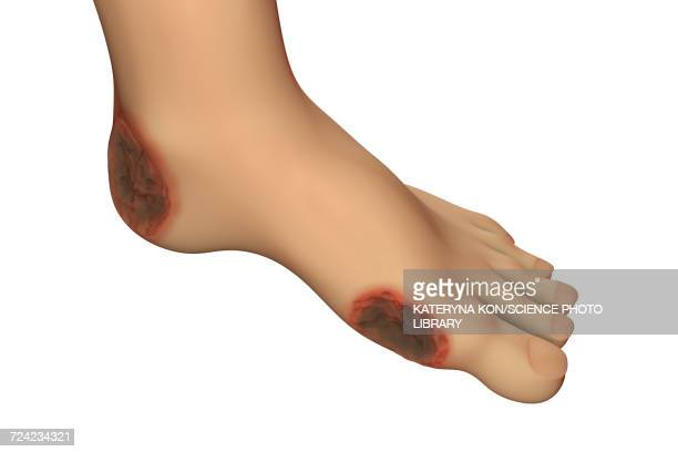 Diabetic foot ulcers, illustration
