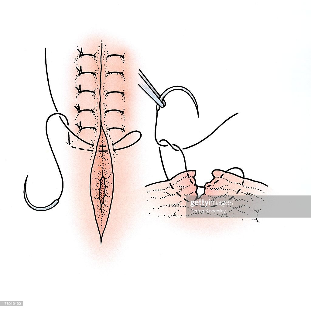 Diagram showing surgical repair of a torn vagina. : Stock Illustration
