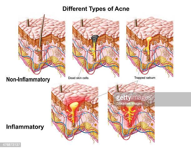 different types of acne, non-inflammatory and inflammatory. - stratum corneum stock illustrations