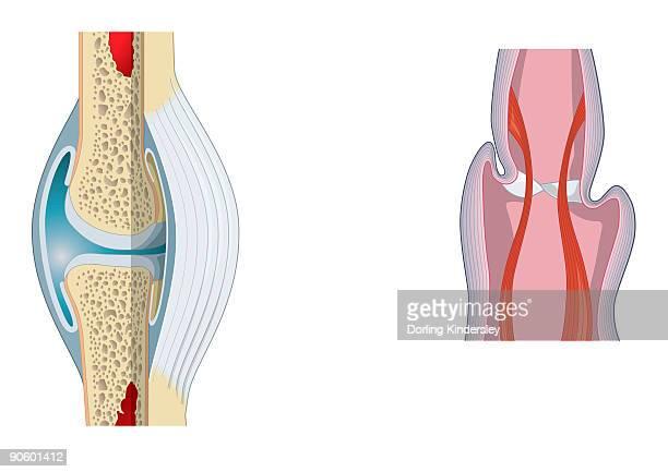 digital illustration of invertebrate joint, left, and vertebrate joint, right - marrom stock illustrations