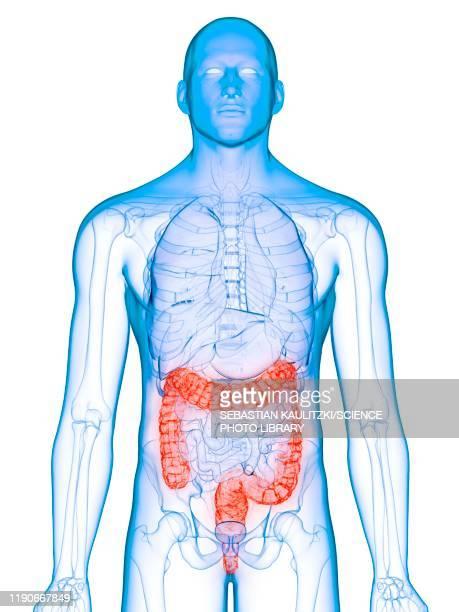 diseased colon, conceptual illustration - human digestive system stock illustrations