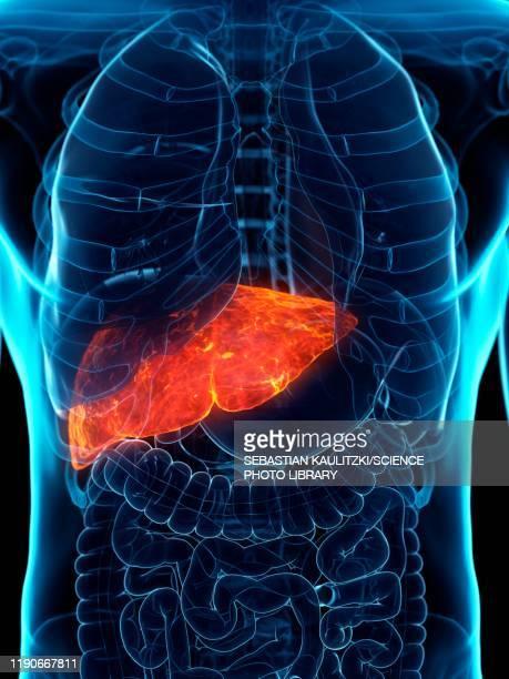 ilustrações de stock, clip art, desenhos animados e ícones de diseased liver, conceptual illustration - desconfortável