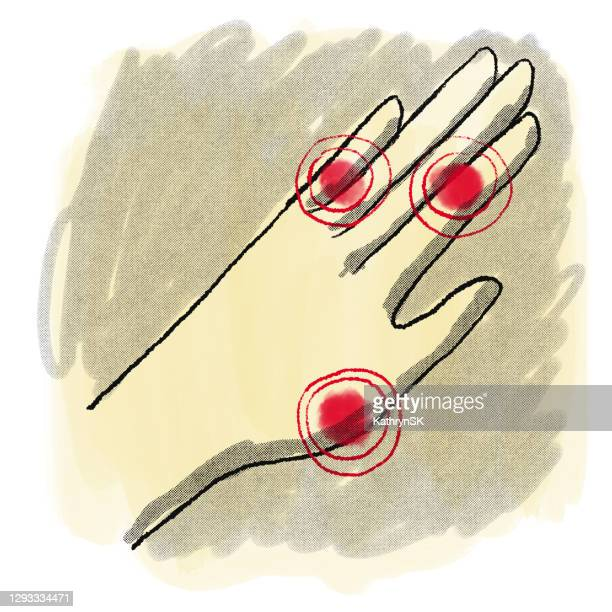 drawing of hand with pain highlights - kathrynsk stock illustrations