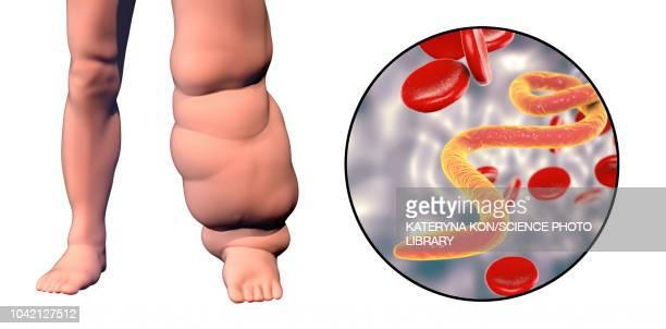 elephantiasis, illustration - elephantiasis stock-grafiken, -clipart, -cartoons und -symbole