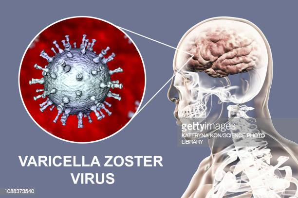 illustrazioni stock, clip art, cartoni animati e icone di tendenza di encephalitis caused by varicella zoster virus, illustration - herpes zoster