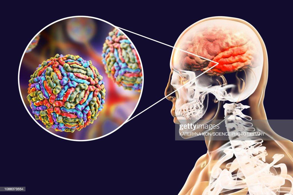 Encephalitis caused by West Nile virus, illustration : stock illustration