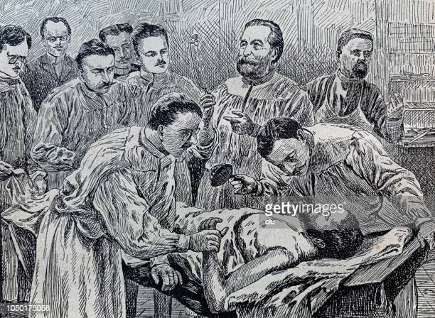 ernst von bergmann in the surgery room in berlin, surgical clinic - history stock illustrations