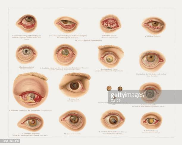eye diseases, lithograph, published in 1897 - sick stock illustrations, clip art, cartoons, & icons