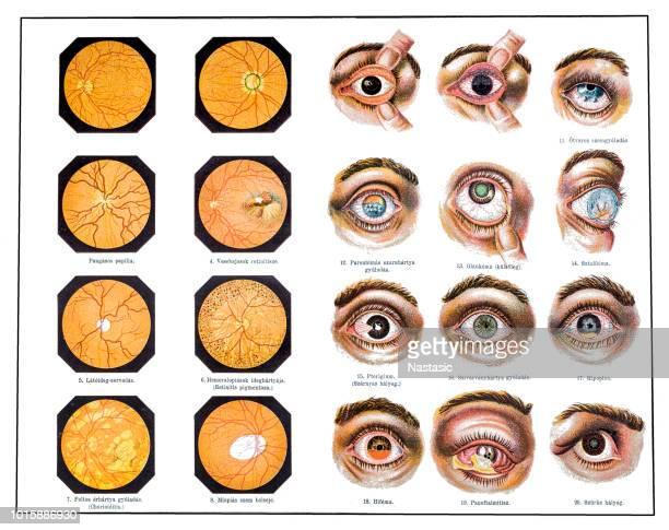 ilustrações, clipart, desenhos animados e ícones de problemas de olhos - retina globo ocular