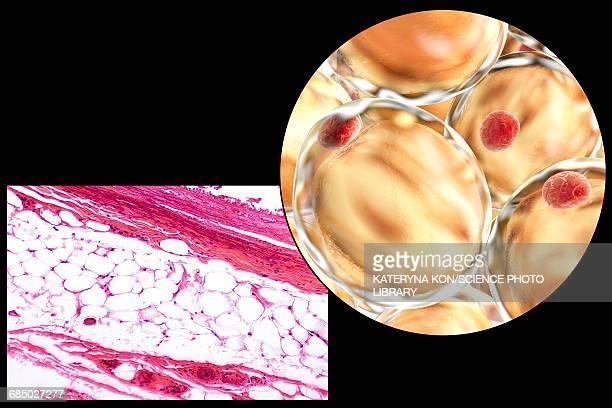 fat cells, illustration - demolished stock illustrations