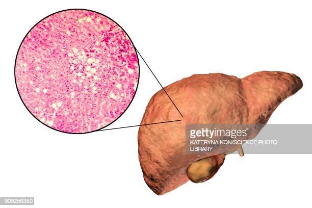ilustraciones, imágenes clip art, dibujos animados e iconos de stock de fatty liver, illustration and micrograph - diabetes