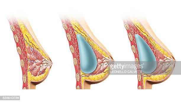 ilustraciones, imágenes clip art, dibujos animados e iconos de stock de female breast implant, cut away , artwork - aumento de senos