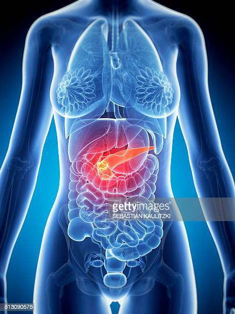 female pancreas showing tumor, artwork - tumor stock illustrations