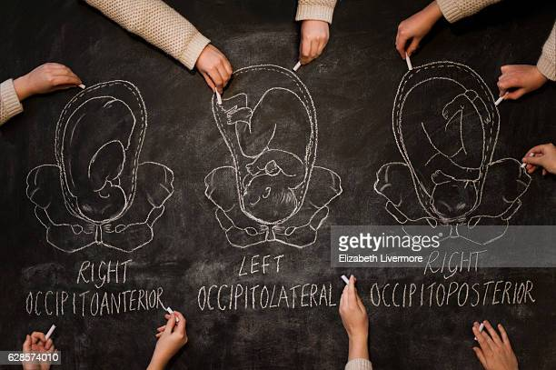 Fetal positions depicted with chalk on a blackboard wall