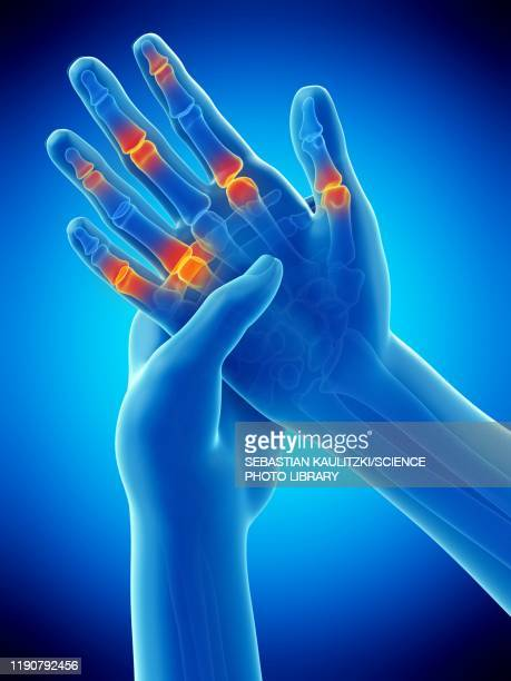 finger pain, conceptual illustration - rheumatism stock illustrations