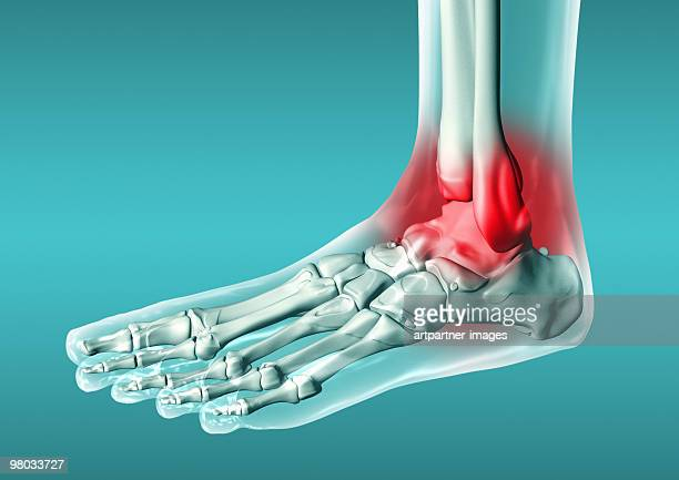 foot joint, inflamation, osteoarthritis - ankle stock illustrations