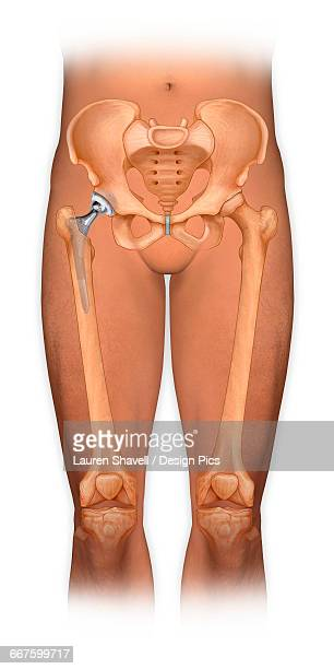 Front view of a body showing a total hip replacement