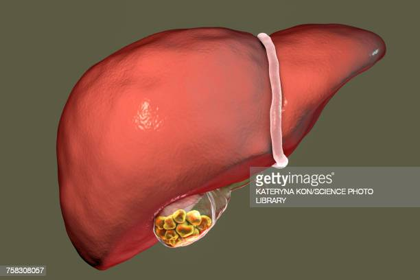 gallstones, illustration - human liver stock illustrations, clip art, cartoons, & icons