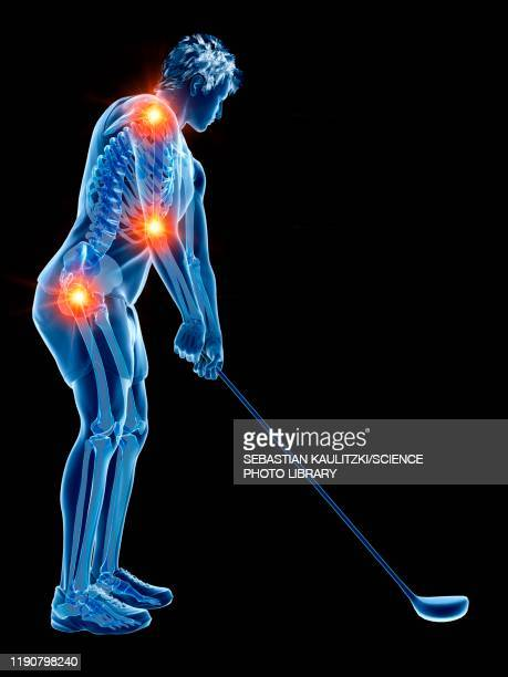 golf player with painful joints, illustration - rheumatism stock illustrations