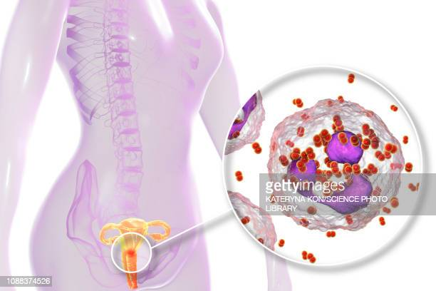 gonorrhoea infection in female, illustration - geschlechtskrankheit stock-grafiken, -clipart, -cartoons und -symbole