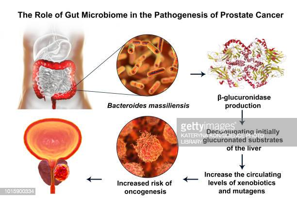 gut microbiome and prostate cancer, illustration - metastatic tumour stock illustrations