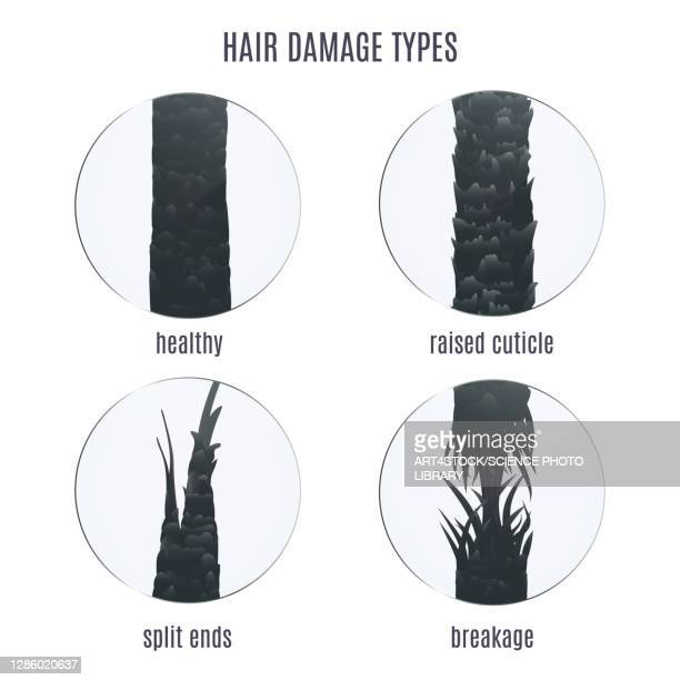 hair damage types, illustration - human scalp stock illustrations